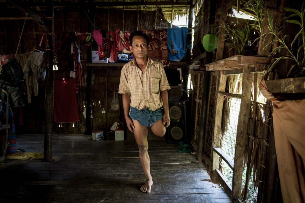 Ko Htun Win lost his left leg to a crocodile in 2018 while setting a fishing net in the waters close to his village of Wae Chaung. (Hkun Lat | Frontier)