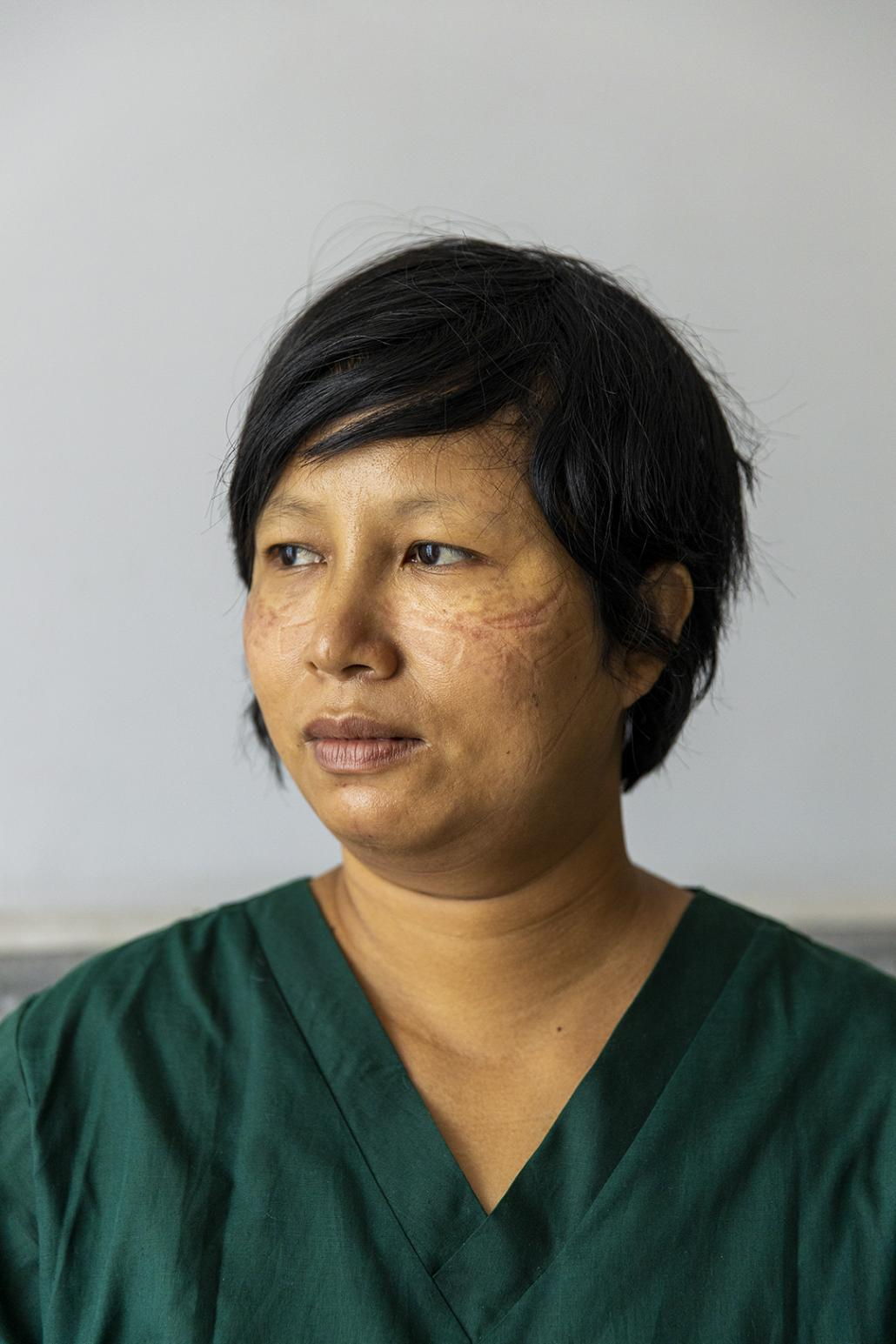 A medical worker, her face still bearing marks from wearing personal protective equipment. (Hkun Lat | Frontier)