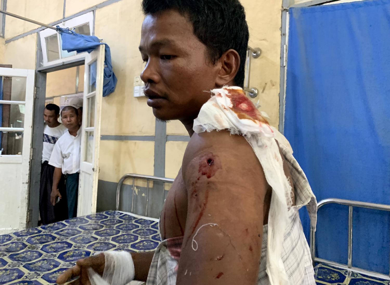 rakhine_wounded_1.jpg