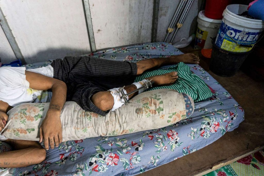 Trishaw rider Ko Maung Win Myo lies in bed at his home in Yangon on May 28. He has been unable to work since he was shot in the leg at an anti-coup protest in March, and has had to seek costly private treatment because he's too afraid to go to junta-controlled hospitals. (AFP)