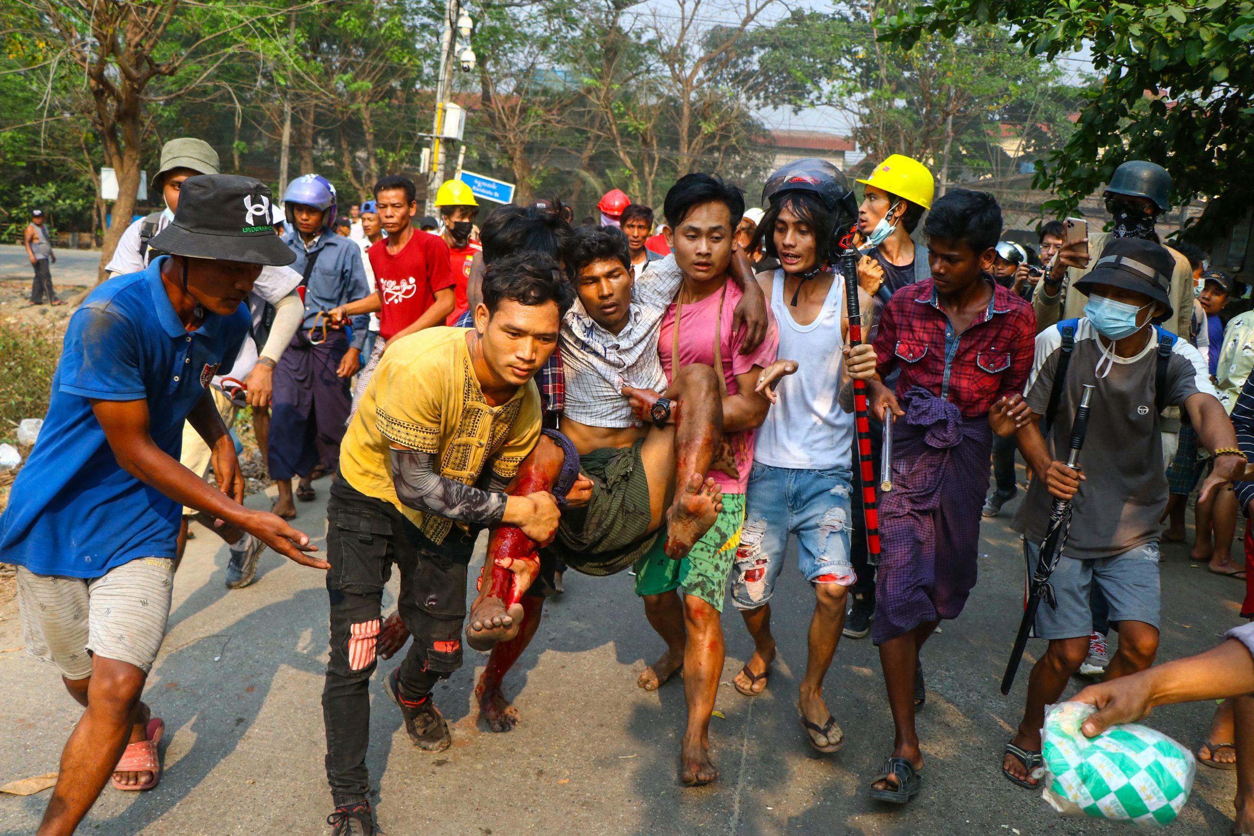 လုံခြုံရေးတပ်ဖွဲ့ဝင်များ၏ ပစ်ခတ်ဖြိုခွင်းမှုကြောင့် ဒဏ်ရာရရှိသွားသူ တစ်ဦးကို ဘေးကင်းရာသို့ ဆန္ဒပြသူများက ခေါ်ဆောင်သွားကြစဉ်။ ယင်းဓာတ်ပုံကို ရန်ကုန်မြို့က ဆန္ဒပြပွဲတစ်ခုတွင် ရိုက်ကူးထားခြင်း ဖြစ်သည်။ (ဓာတ်ပုံ | အေအက်ဖ်ပီ)